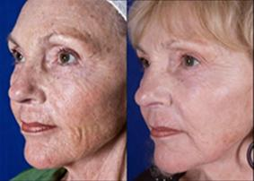 Skin Changes Induced by Aging